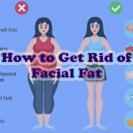 How to Get Rid of Facial Fat